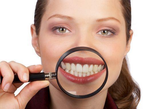 amarillean-dientes