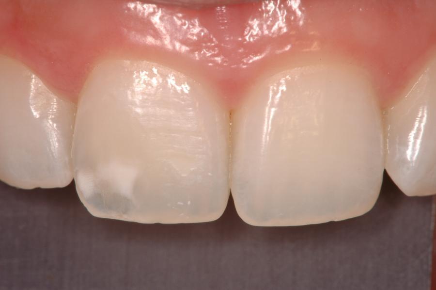veo-manchas-blancas-mis-dientes-son