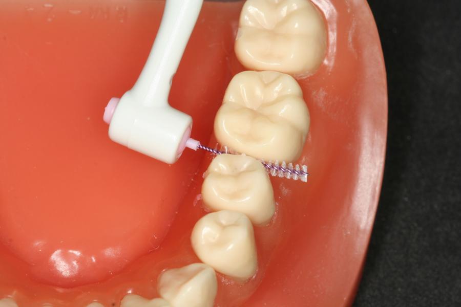 necesario-limpiarse-dientes