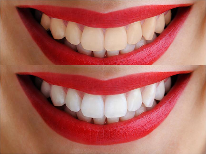 tipo-blanqueamiento-dental-te-recomendamos