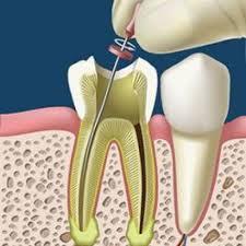 consiste-una-endodoncia