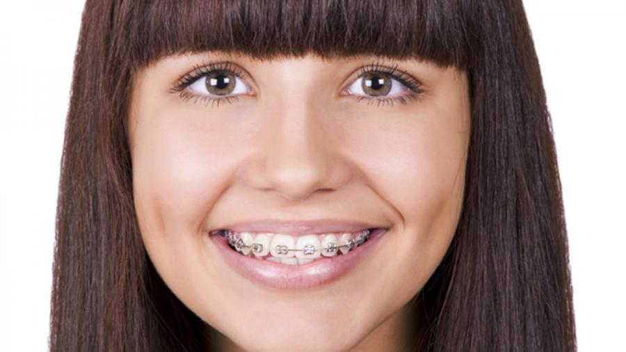nunca-tarde-para-ponerse-ortodoncia