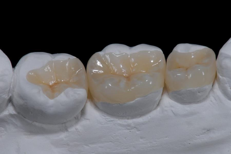 consiste-una-incrustacion-dental