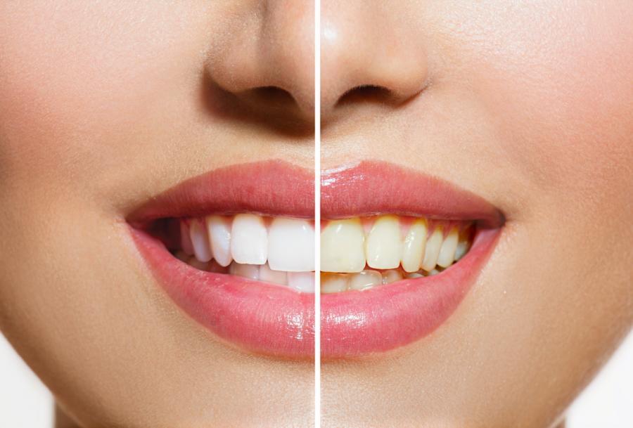 ha-cambiado-el-color-mis-dientes