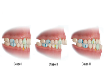maloclusion-dental