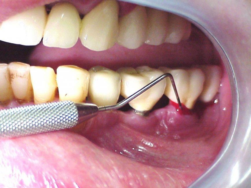 consecuencias-no-limpiarse-bien-implantes-dentales