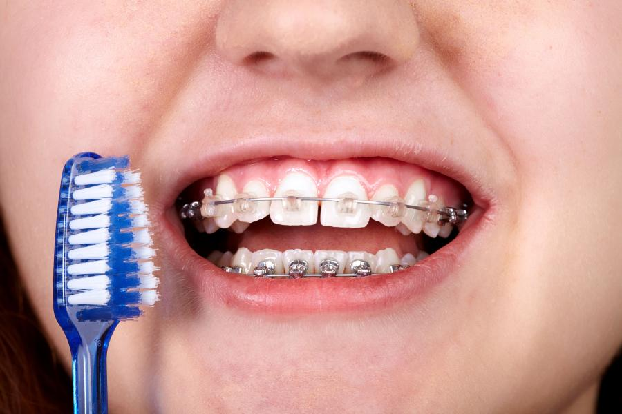 como-debes-cuidar-tu-boca-si-llevas-ortodoncia