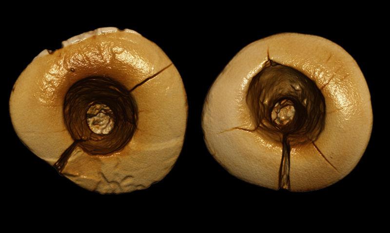 primeros-espastes-dentales-se-hicieron-edad-media