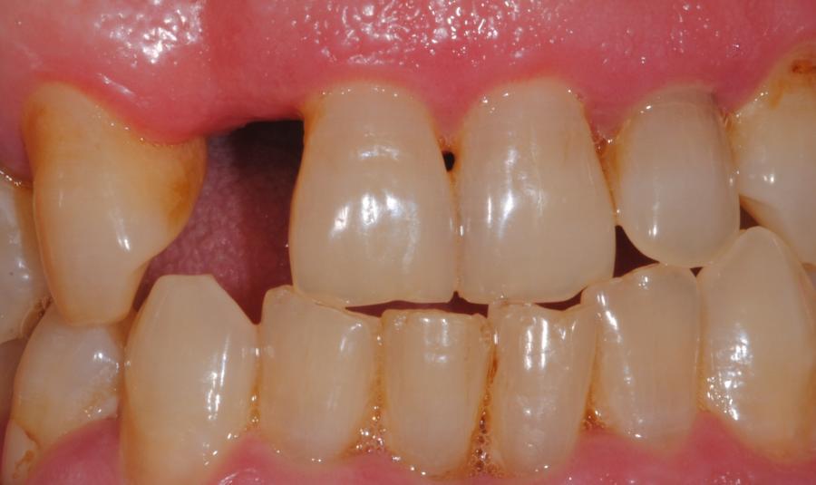 se-produce-perdida-algun-diente
