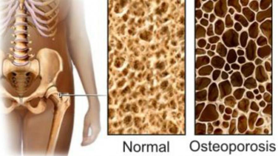vigila-tu-boca-si-tienes-osteoporosis
