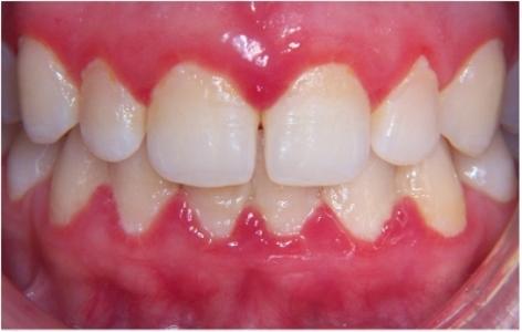 enfermedades-periodontales-gingivitis-periodontitis