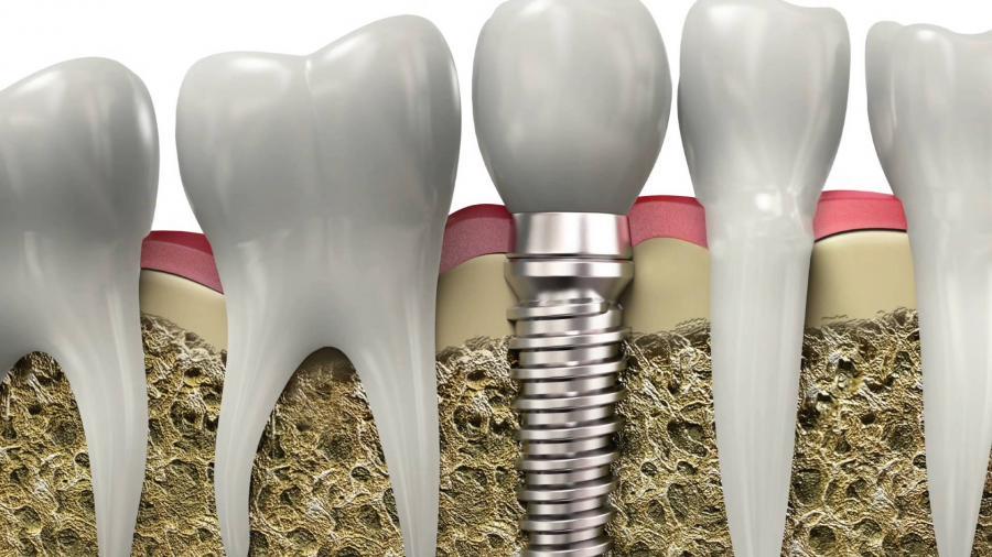 hay-tener-cuenta-hora-ponerse-implantes
