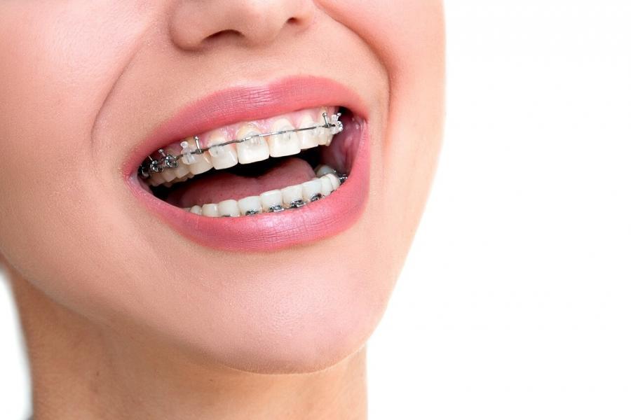 puedo-ponerme-ortodoncia-si-padezco-periodontitis