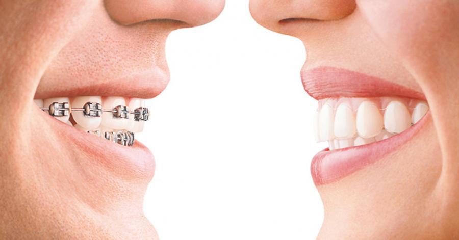 has-decidido-el-tipo-ortodoncia-mas-te-conviene