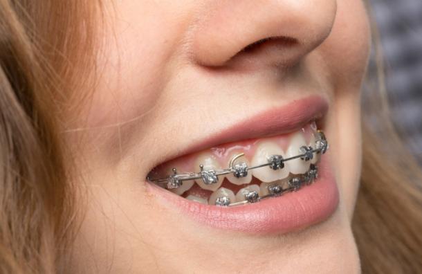 tienes-muchas-razones-para-ponerte-ortodoncia