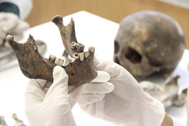 cadaveres-identificados-dientes