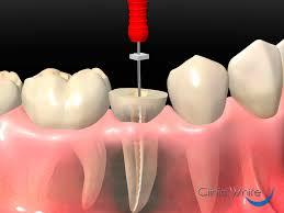 una-endodoncia-matar-el-nervio-un-diente