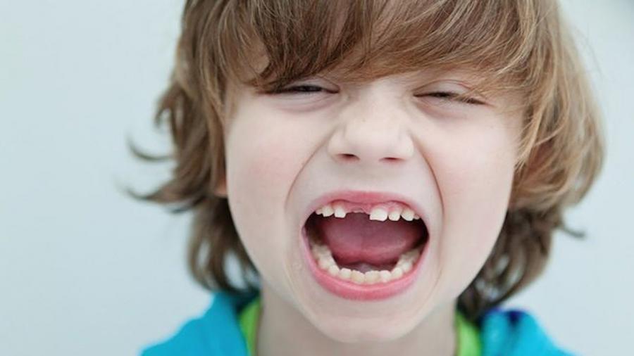 seguro-tu-hijo-le-estan-creciendo-dientes-bien