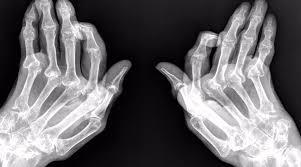 vigila-tus-encias-si-no-quieres-padecer-artrosis